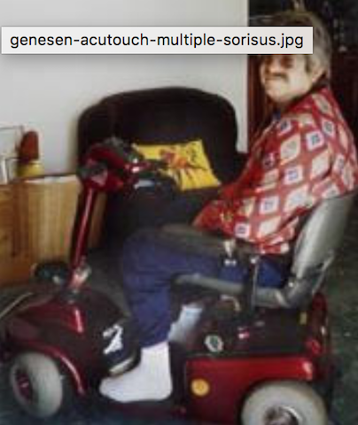 -genesen-acutouch-multiple-sclerosis-4.png
